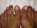 Topuklu giymek için parmaklarını kestiriyorlar